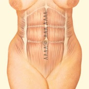 stomach muscle tightening